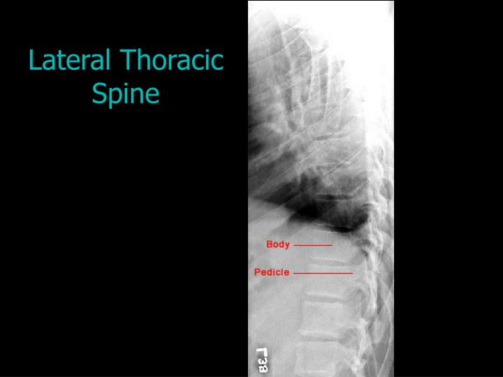 Lateral Thoracic Spine