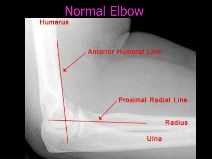 Normal Elbow