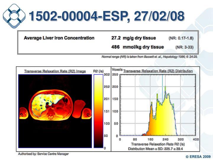1502-00004-ESP, 27/02/08