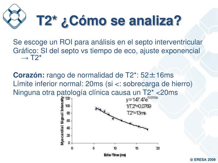 T2* ¿Cómo se analiza?