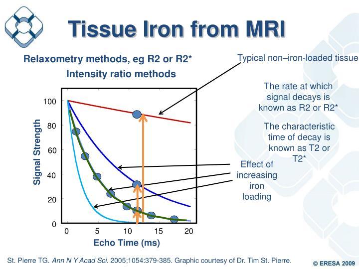 Tissue Iron from MRI