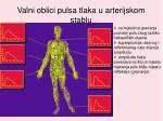 valni oblici pulsa tlaka u arterijskom stablu