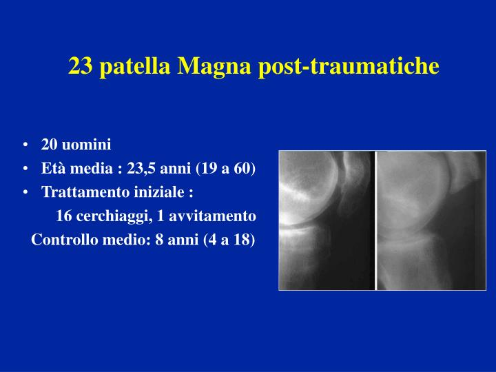 23 patella Magna post-traumatiche