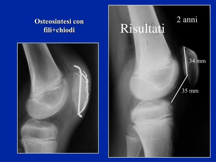 Osteosintesi con fili+chiodi