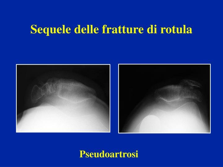 Sequele delle fratture di rotula