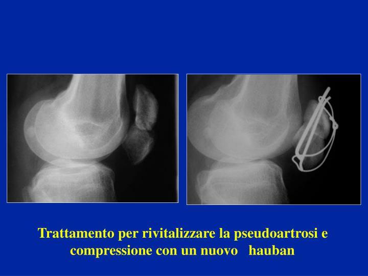 Trattamento per rivitalizzare la pseudoartrosi e compressione con un nuovo   hauban