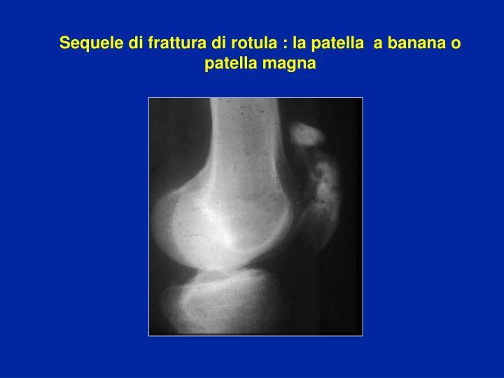 Sequele di frattura di rotula : la patella  a banana o patella magna