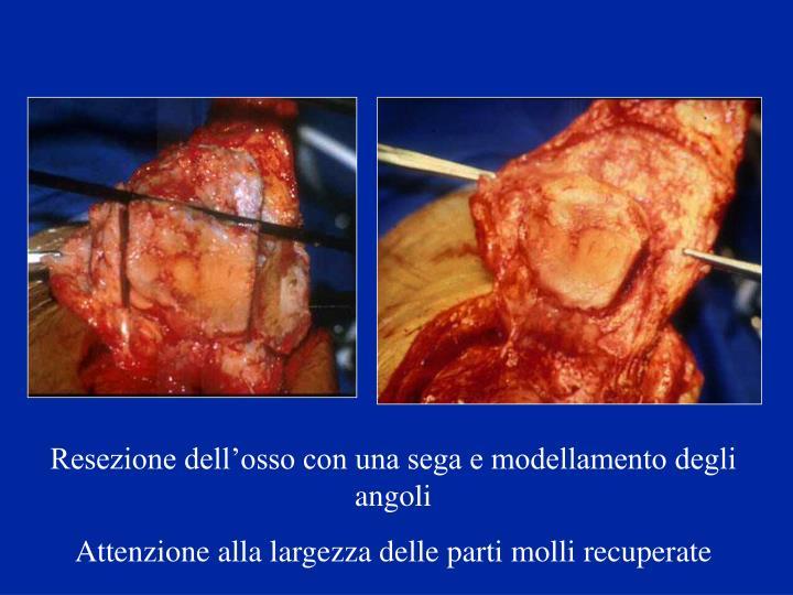 Resezione dell'osso con una sega e modellamento degli angoli