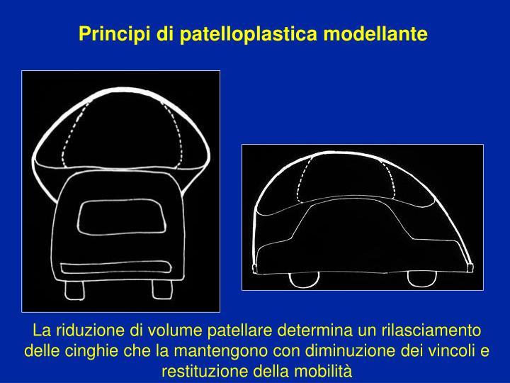Principi di patelloplastica modellante