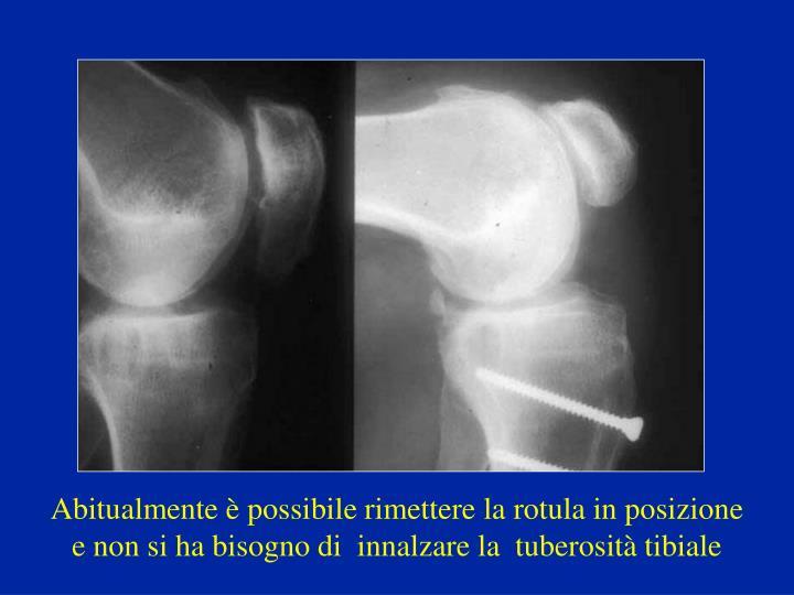 Abitualmente è possibile rimettere la rotula in posizione e non si ha bisogno di  innalzare la  tuberosità tibiale