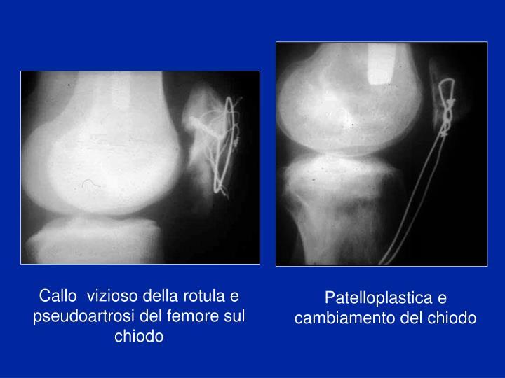 Callo  vizioso della rotula e pseudoartrosi del femore sul chiodo