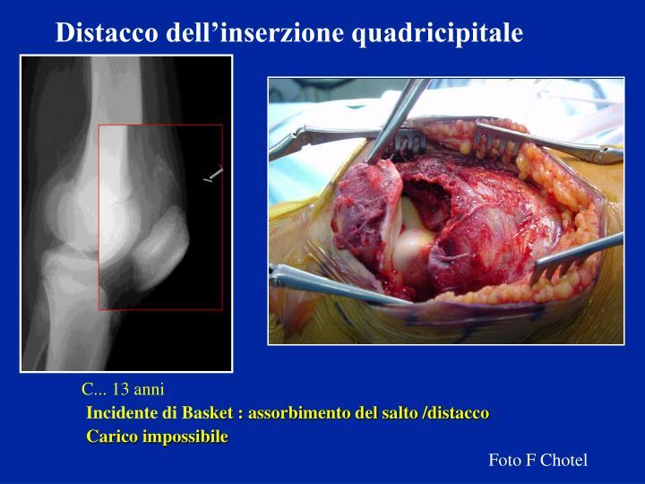 Distacco dell'inserzione quadricipitale