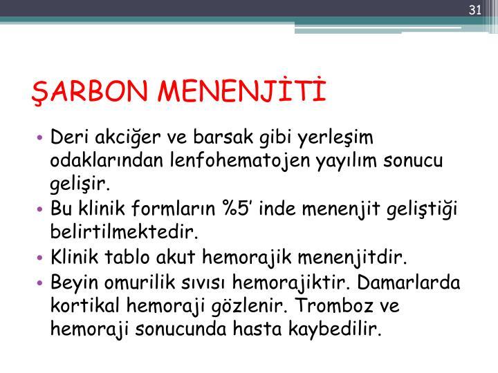 ŞARBON MENENJİTİ
