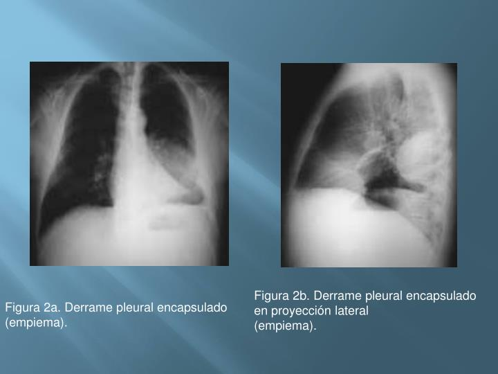 Figura 2b. Derrame pleural encapsulado en proyección lateral