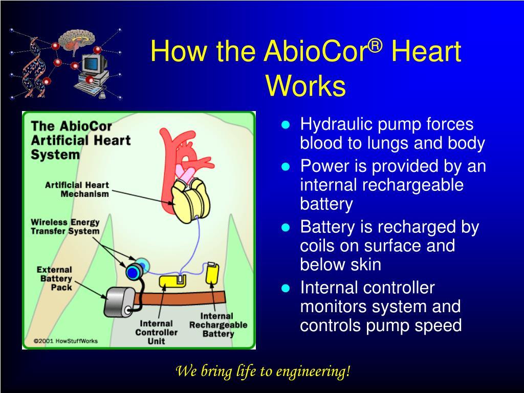 How the AbioCor