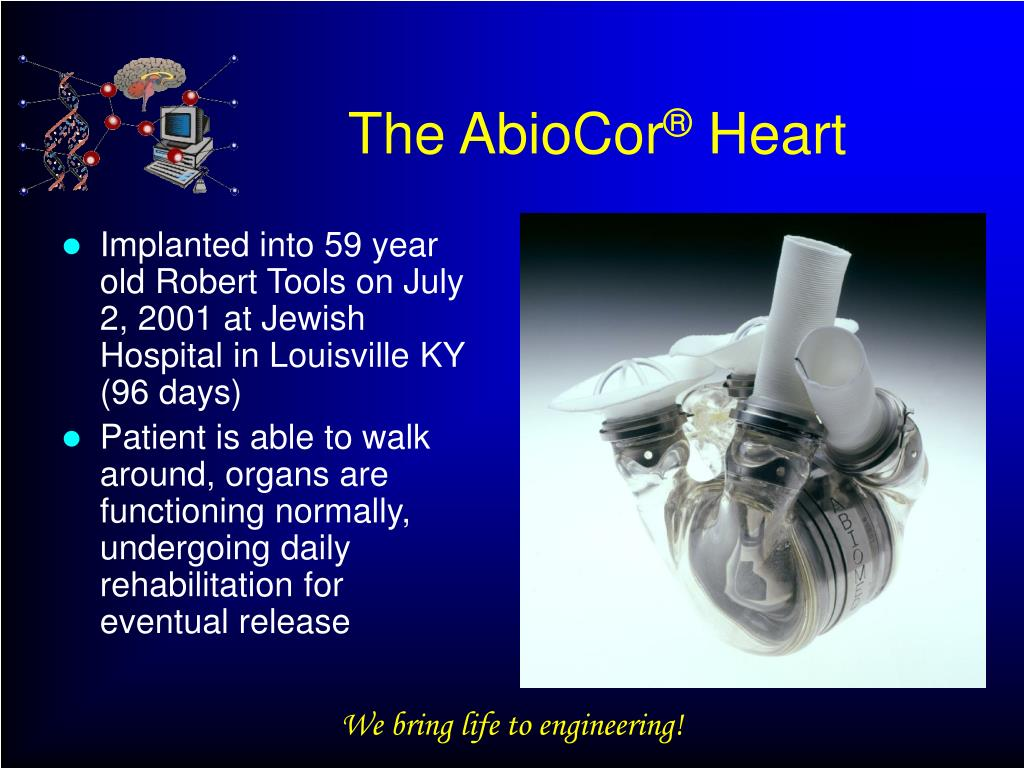 The AbioCor