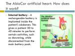 the abiocor artificial heart how does it work11