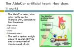 the abiocor artificial heart how does it work13