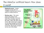 the abiocor artificial heart how does it work14