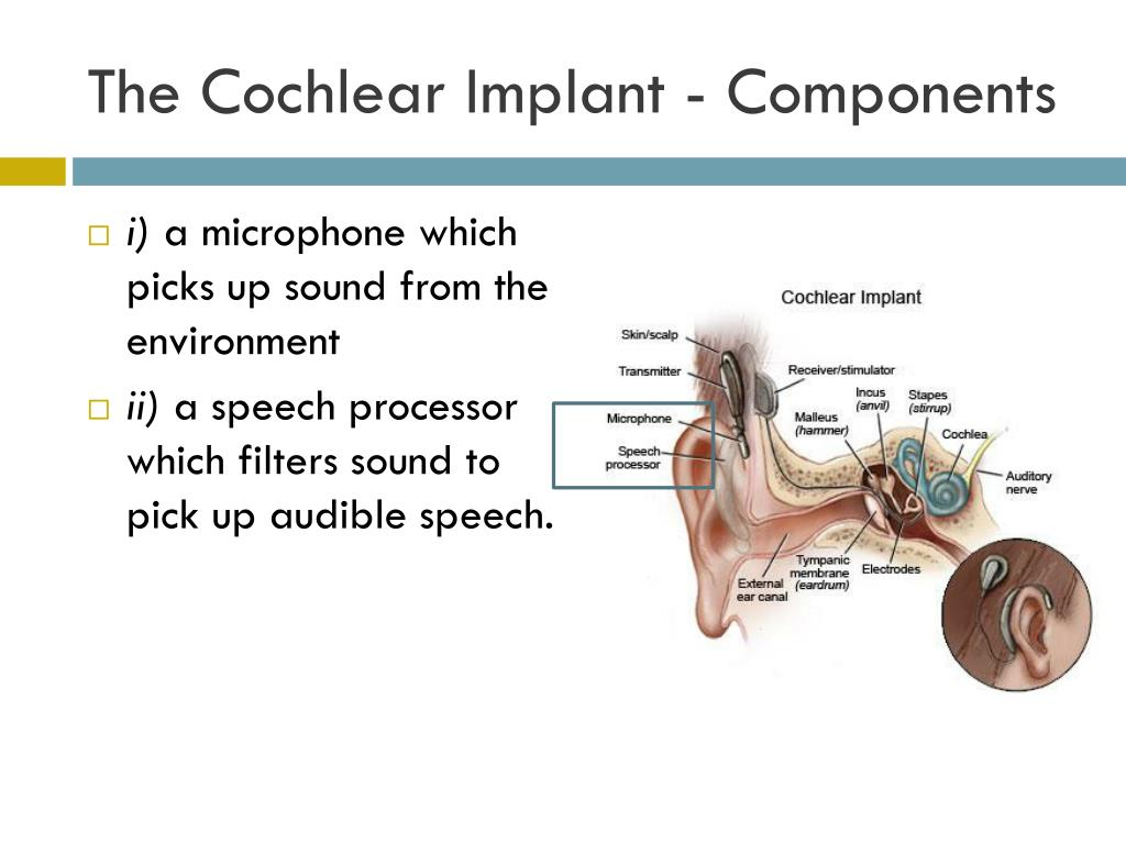 The Cochlear Implant - Components