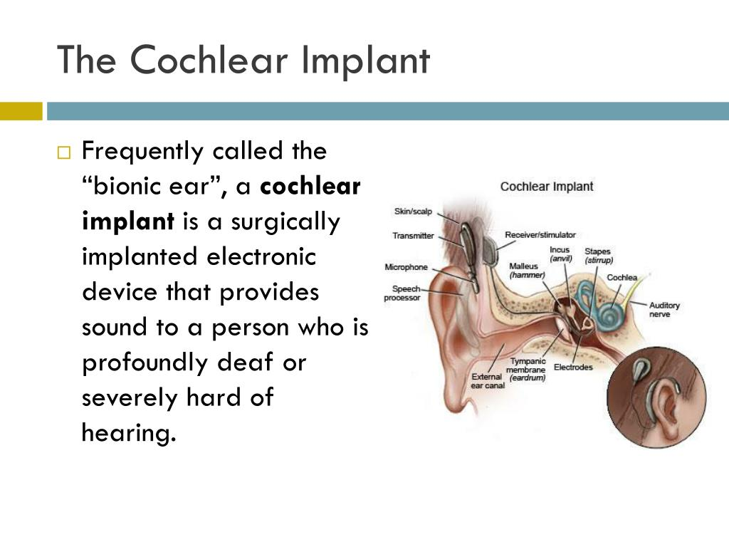 The Cochlear Implant