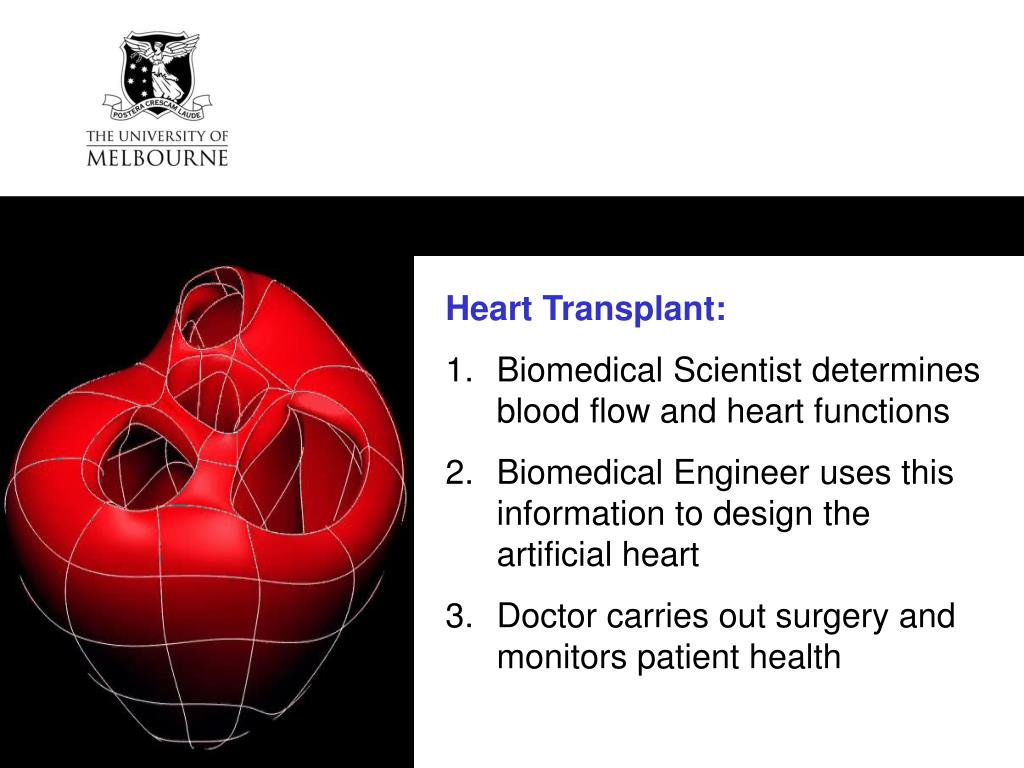 Heart Transplant: