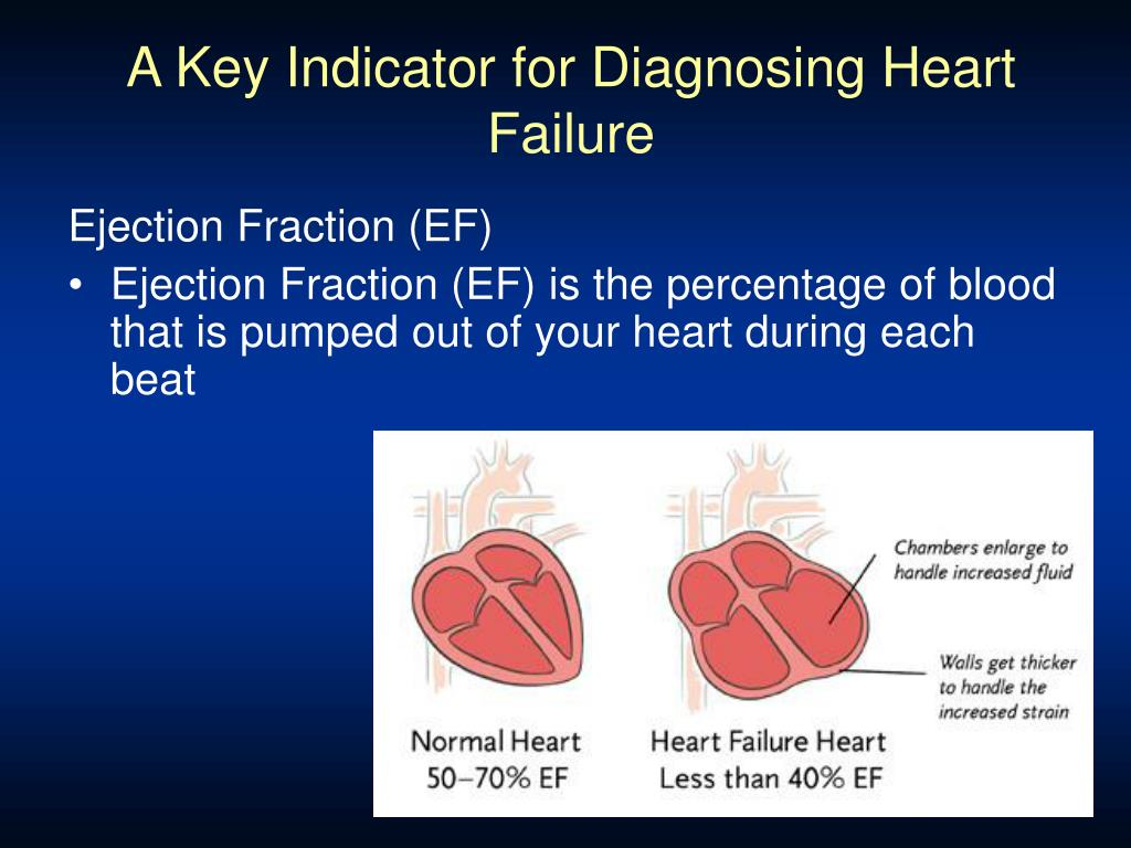 A Key Indicator for Diagnosing Heart Failure