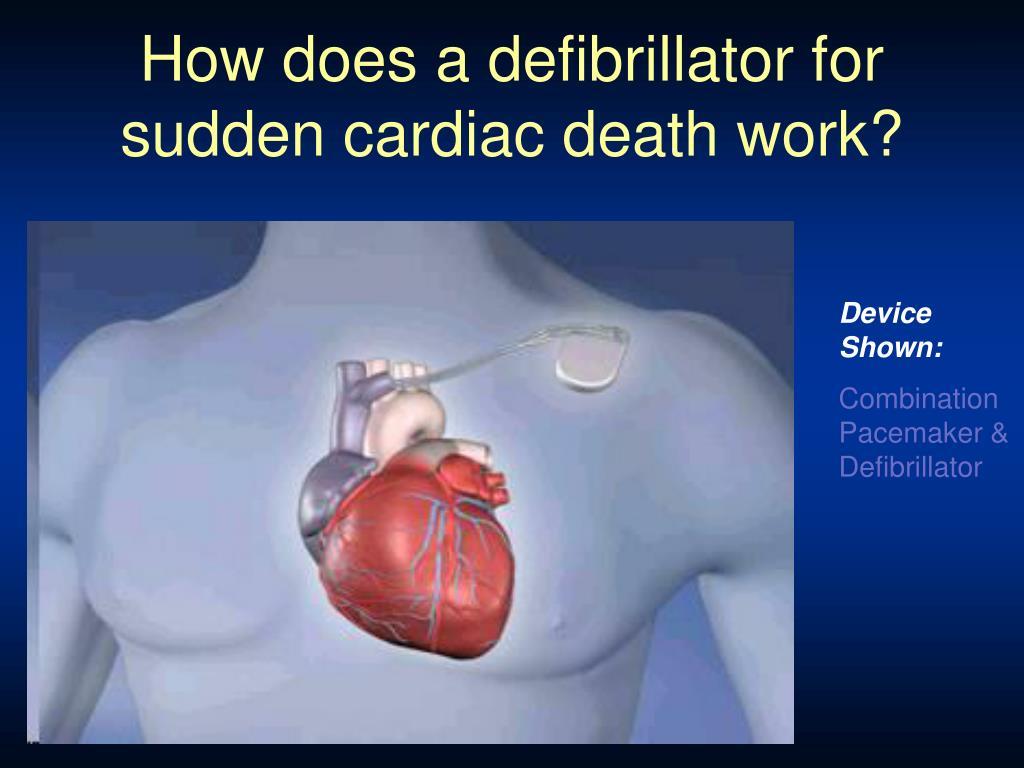 How does a defibrillator for sudden cardiac death work?