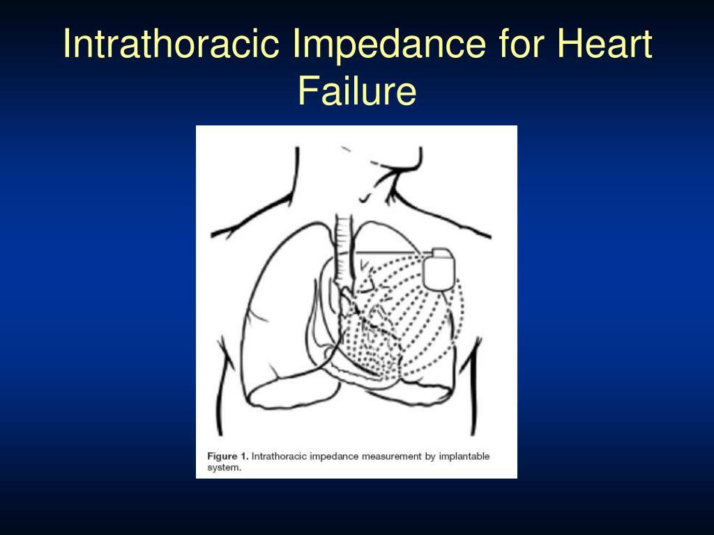 Intrathoracic Impedance for Heart Failure