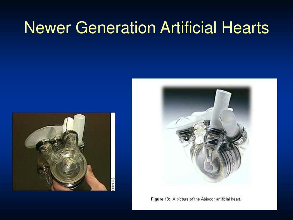 Newer Generation Artificial Hearts