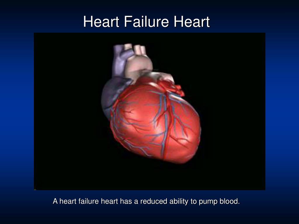 Heart Failure Heart
