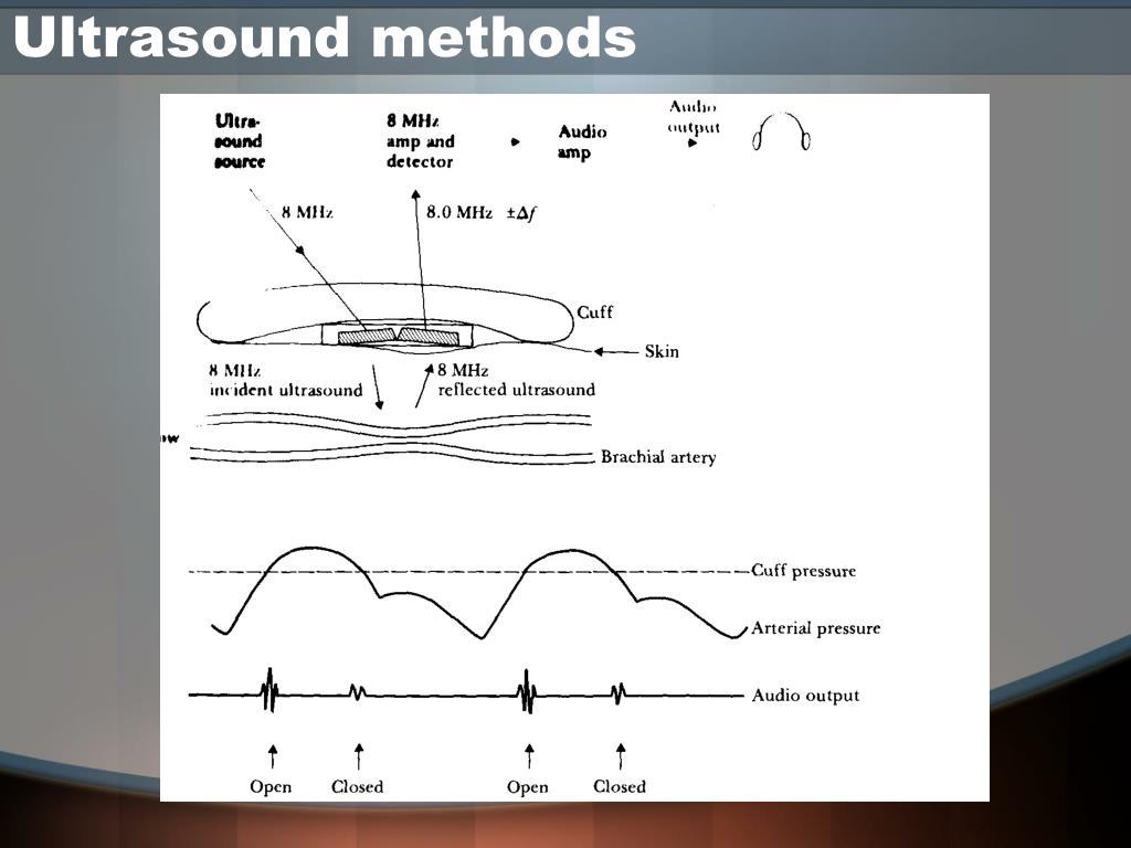 Ultrasound methods