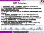qrs detection