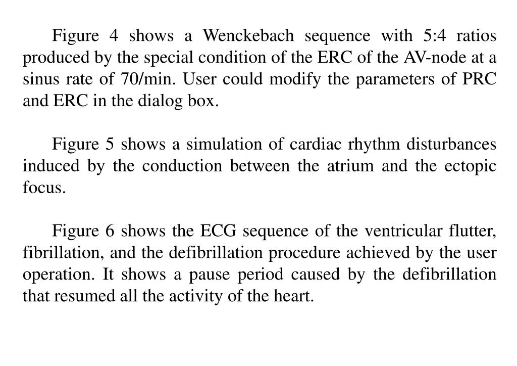 Figure 4 shows a Wenckebach sequence with 5:4 ratios produced by the special condition of the ERC of the AV-node at a sinus rate of 70/min. User could modify the parameters of PRC and ERC in the dialog box.