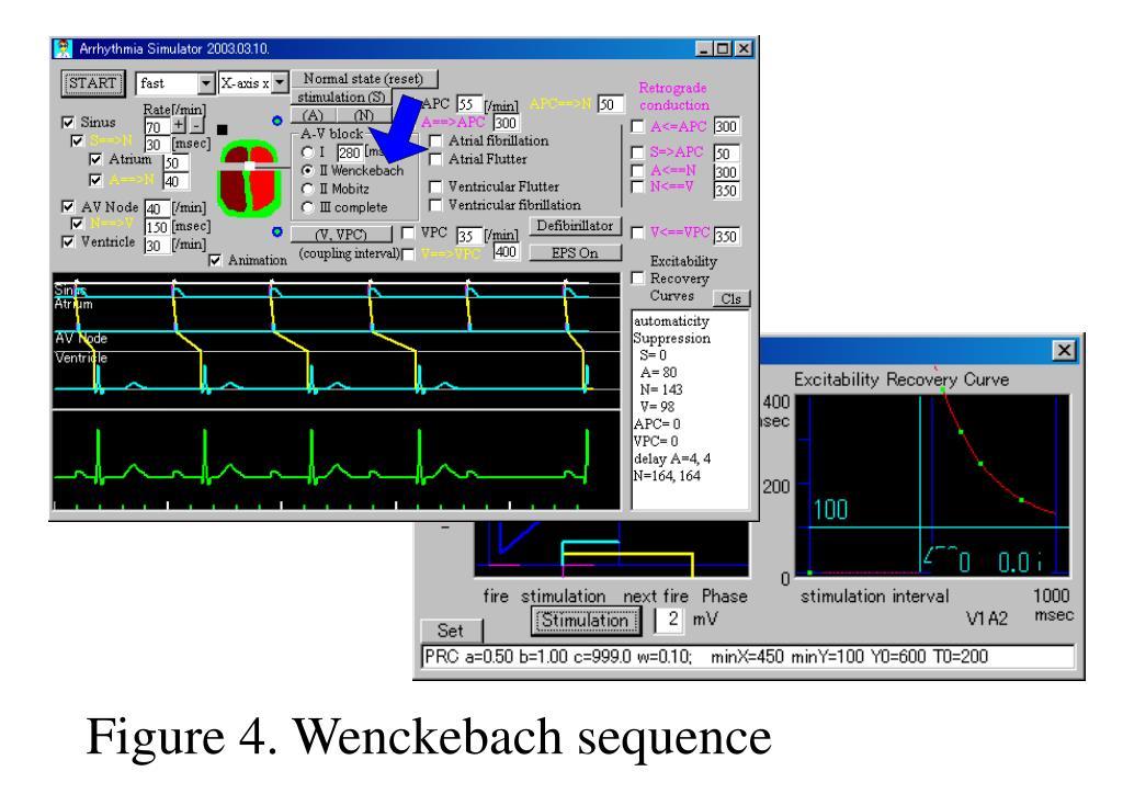 Figure 4. Wenckebach sequence