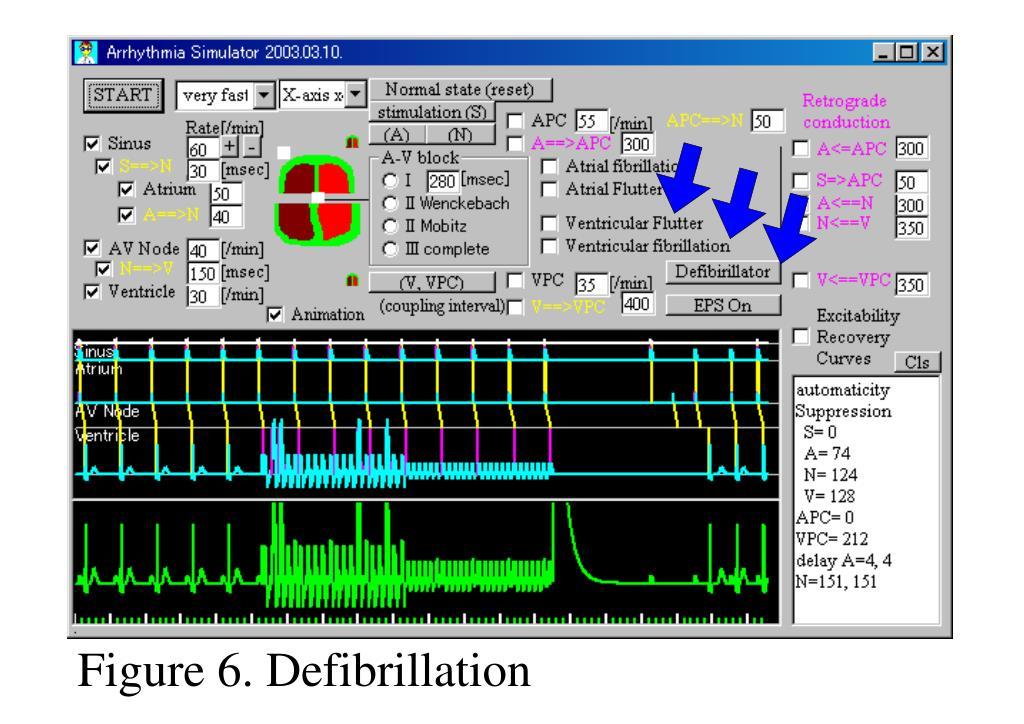 Figure 6. Defibrillation
