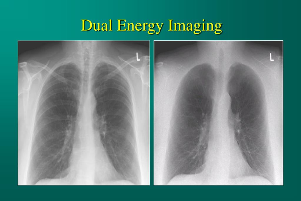 Dual Energy Imaging