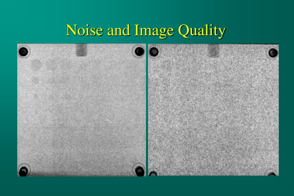 Noise and Image Quality