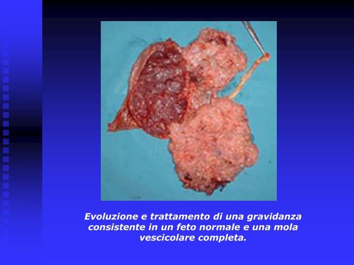 Evoluzione e trattamento di una gravidanza consistente in un feto normale e una mola vescicolare completa.