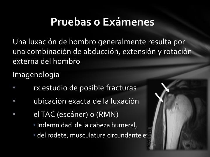 Una luxación de hombro generalmente resulta por una combinación de abducción, extensión y rotación externa del
