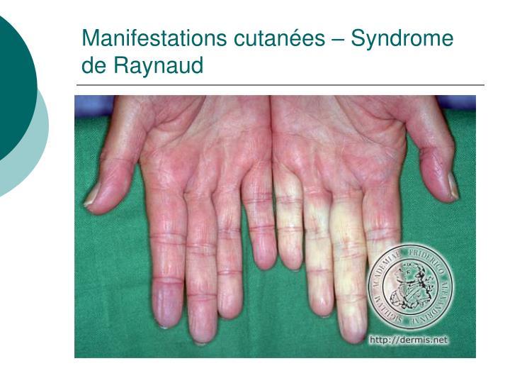 Manifestations cutanées – Syndrome de Raynaud