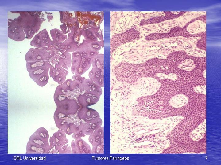 Tumores Faríngeos