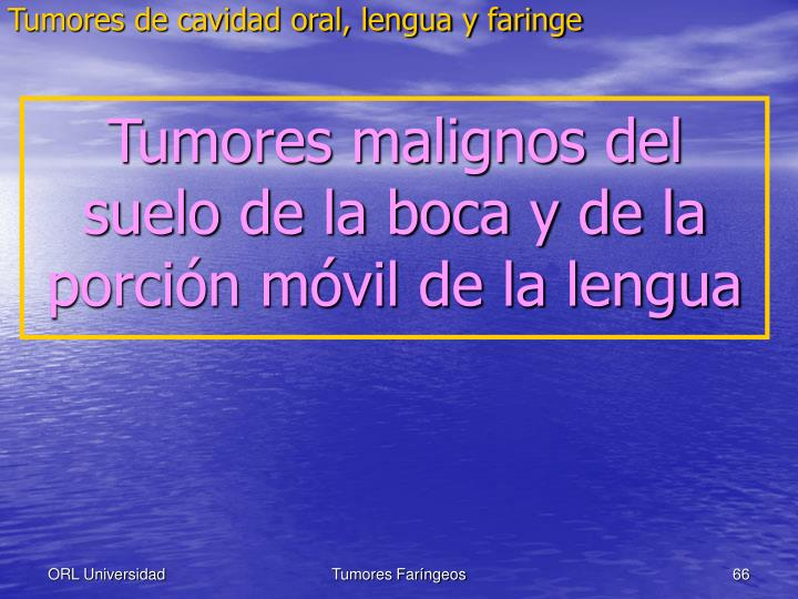 Tumores de cavidad oral, lengua y faringe