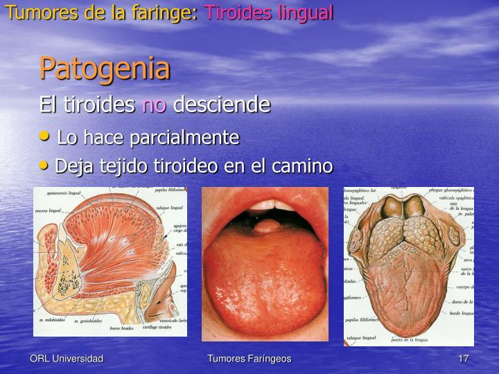 Tumores de la faringe: