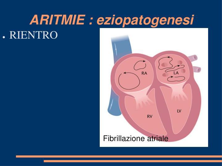 ARITMIE : eziopatogenesi