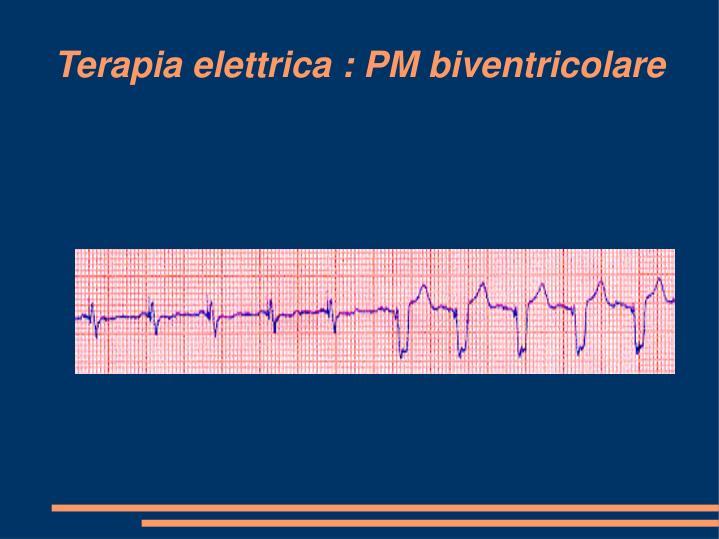 Terapia elettrica : PM biventricolare
