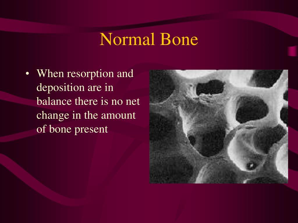 Normal Bone