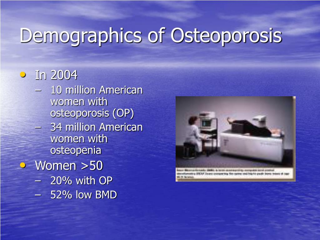 Demographics of Osteoporosis