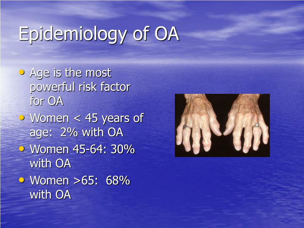 Epidemiology of OA