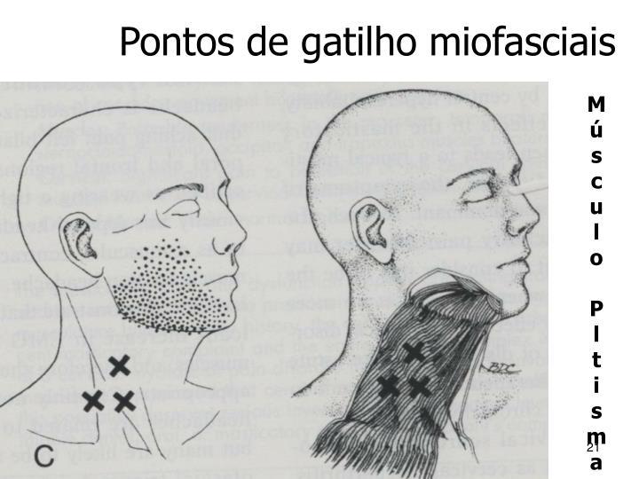 Pontos de gatilho miofasciais